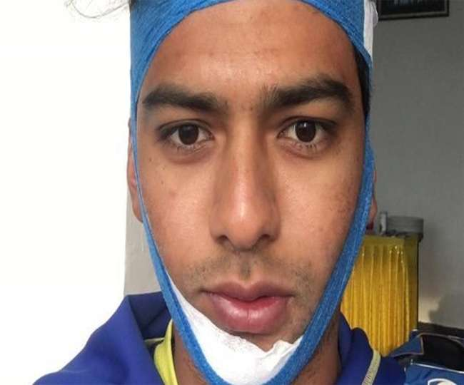 Unmukt Chand broken jaw