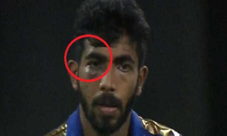 मुंबई इंडियंस के जसप्रीत बुमराह हुए चोटिल, जानिए आगे मैच खेल पाएंगे या नहीं ? Images