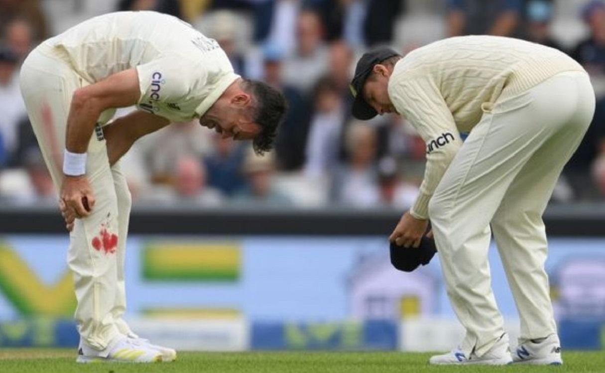 Cricket Image for जेम्स एंडरसन ने जीता दिल,घुटने से खून निकलने के बावजूद करते रहे गेंदबाजी